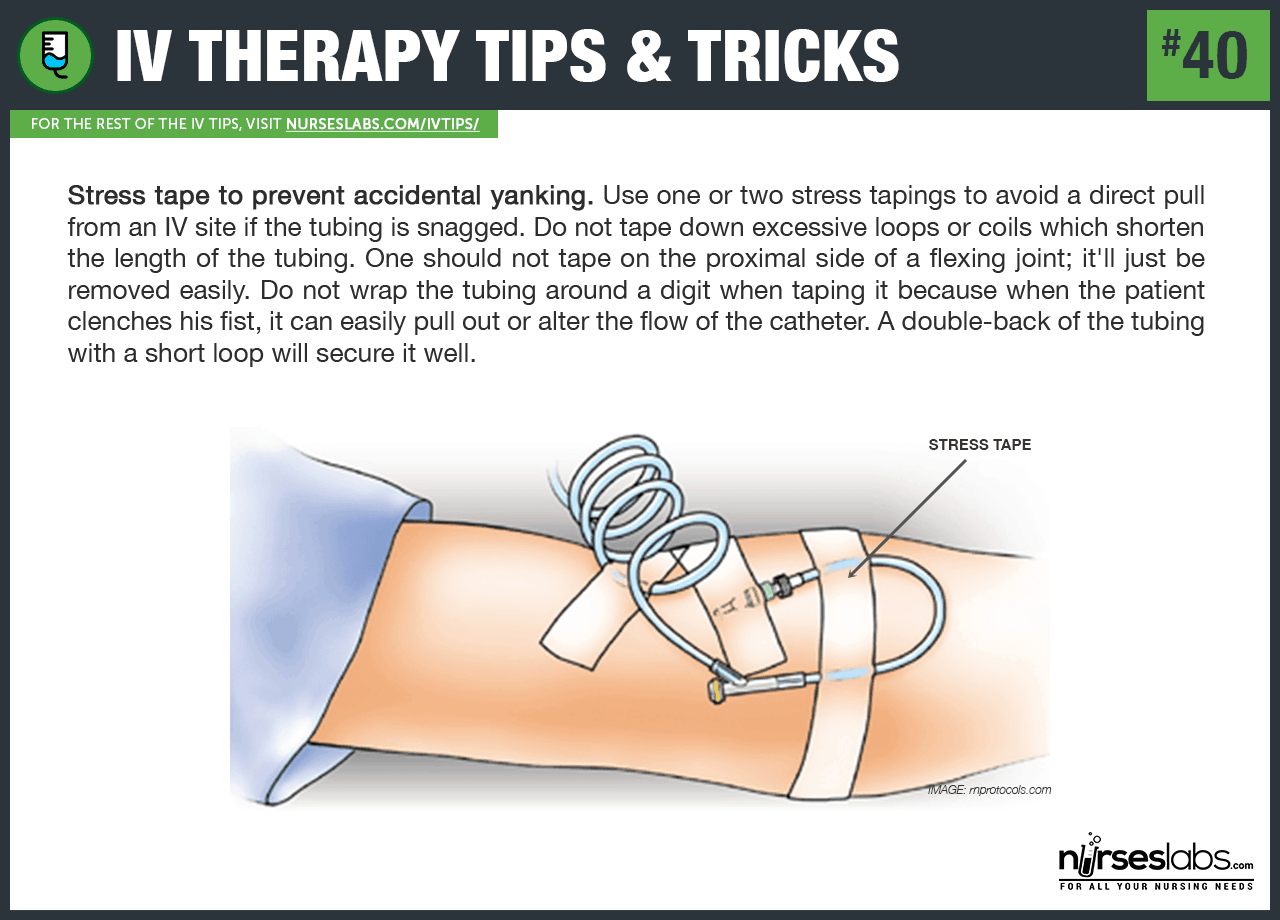 Starting an IV Tips and Tricks: Securing the catheter by adding a stress loop.