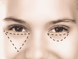 Instead of tracing the outline of your undereye, apply your concealer in a triangular shape. It helps conceal and illuminate the area better.