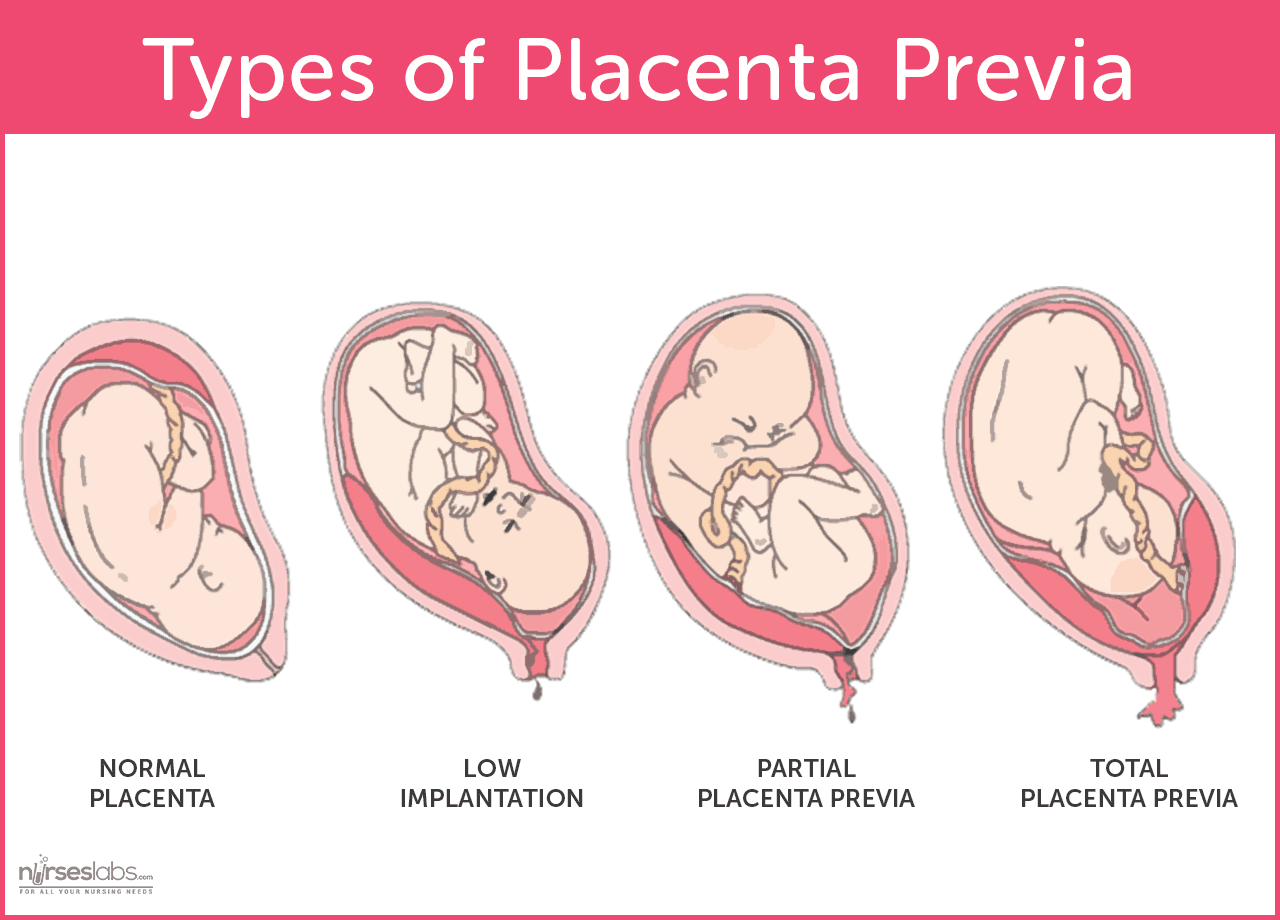 Image result for placenta previa lateralis