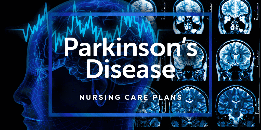 nursing care plan for parkinson s disease patient Nursing lecture notes and nursing care plans on amyotrophic lateral sclerosis nursing care plan disease progresses, the patient may need an.