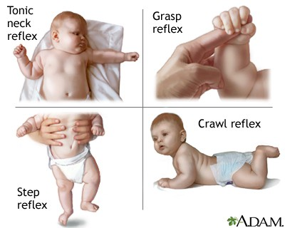 Some of the newborn reflexes.