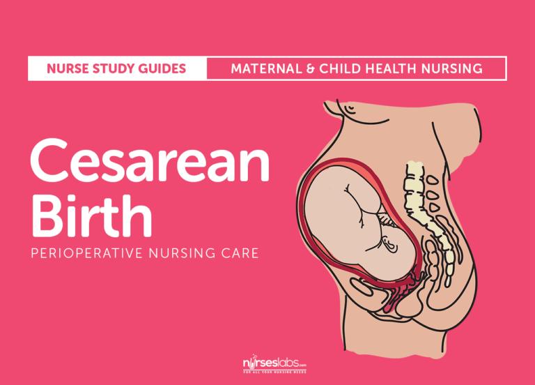 Cesarean Birth (C-Section) Nursing Care and Management