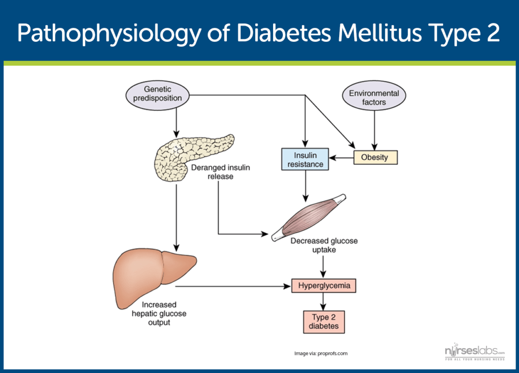 essay on diabetes mellitus