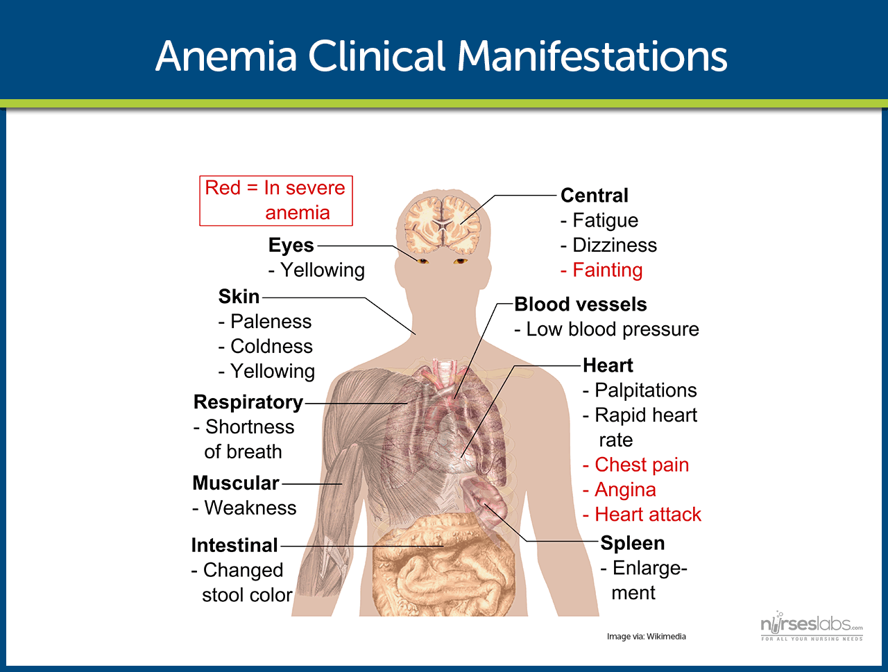 Anemia Clinical Manifestations