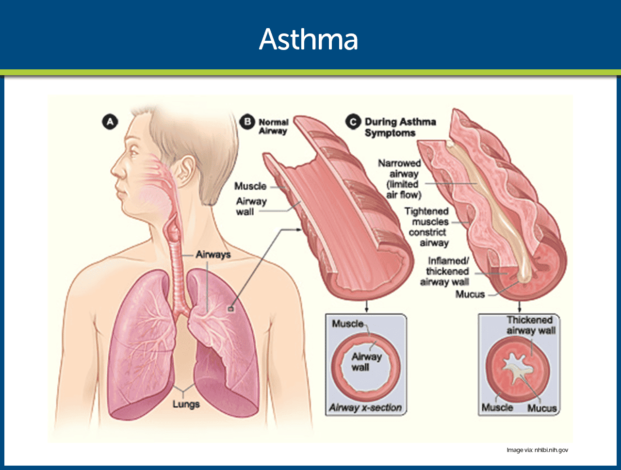asthma diagram  asthma nursing care management and study guide