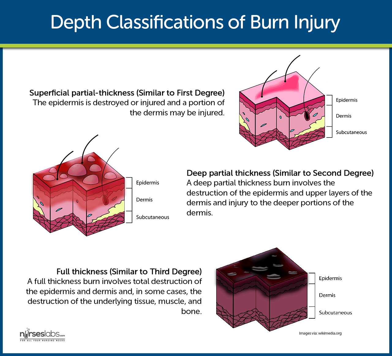 Classifications of Burn Injury By Depth