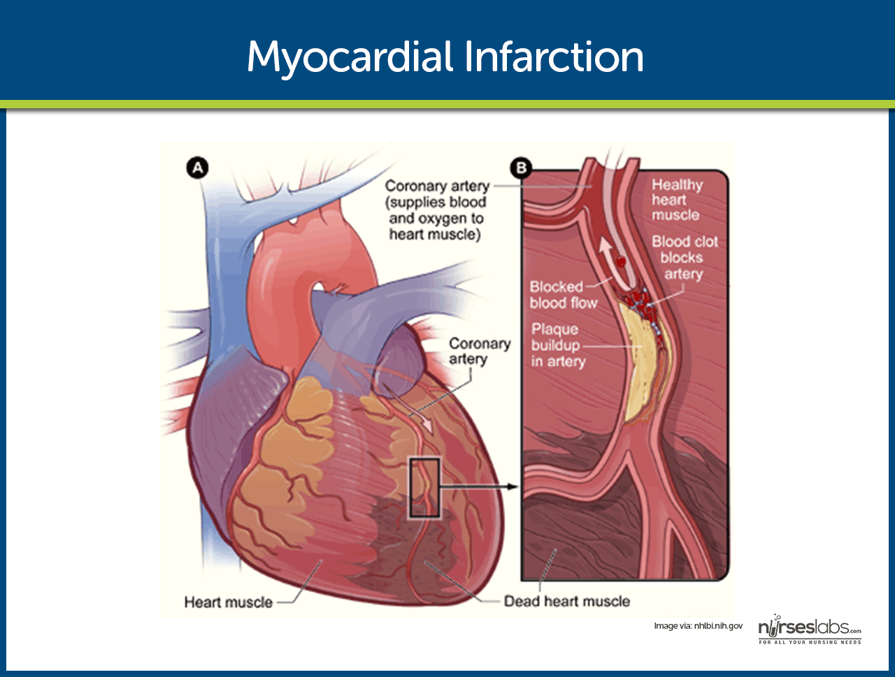 myocardial infraction Myocardial infarction, abbreviated mi, is death of cardiac muscle due to a compromised blood supplyin the context of pathology, they are occasionally seen at autopsy the lay term for mi is heart attack.