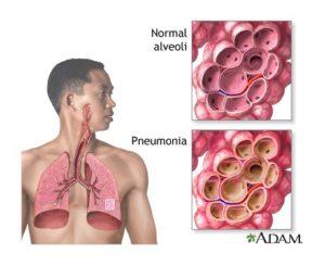 pneumonia-image
