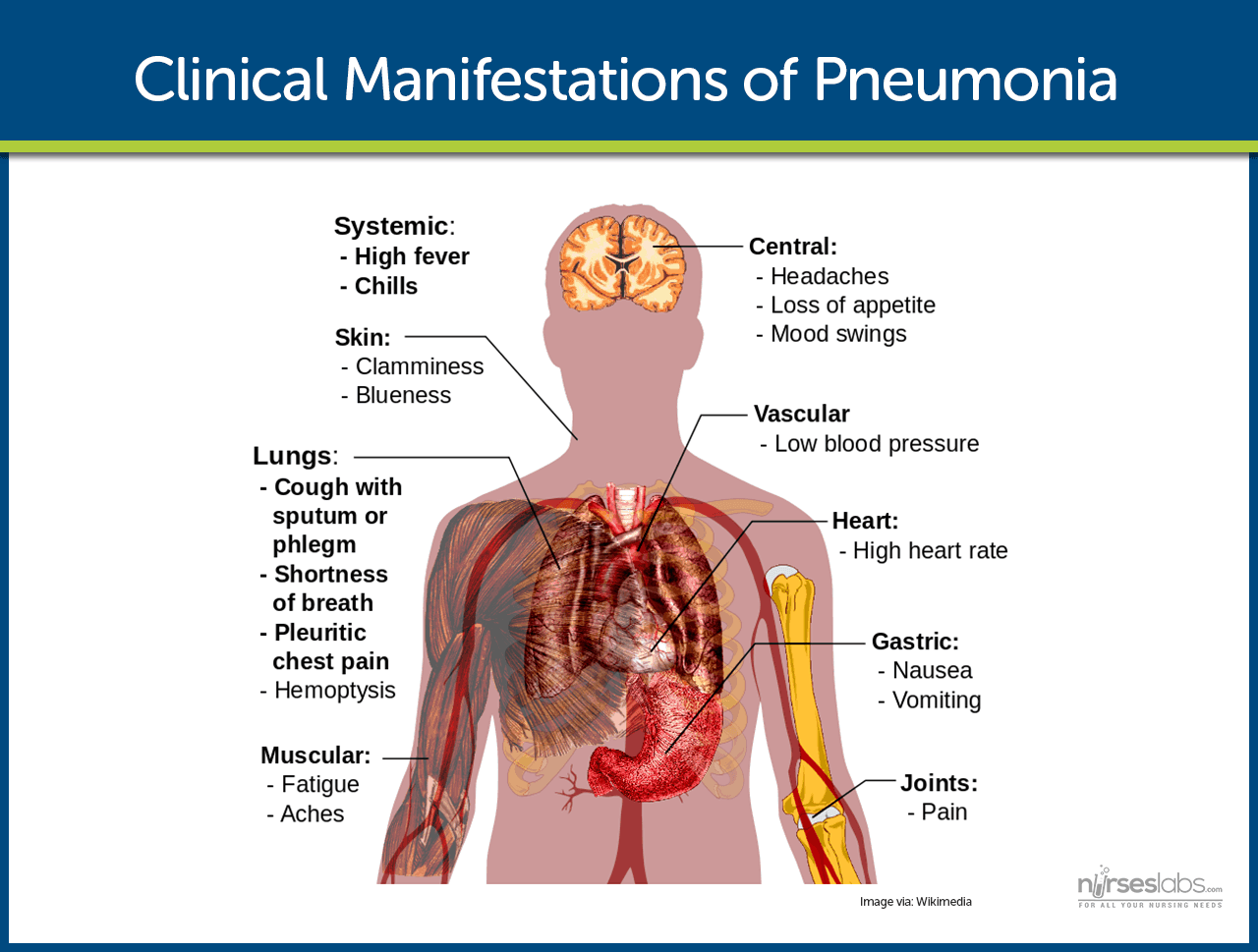 pneumonia nursing care management and study guide, Human body