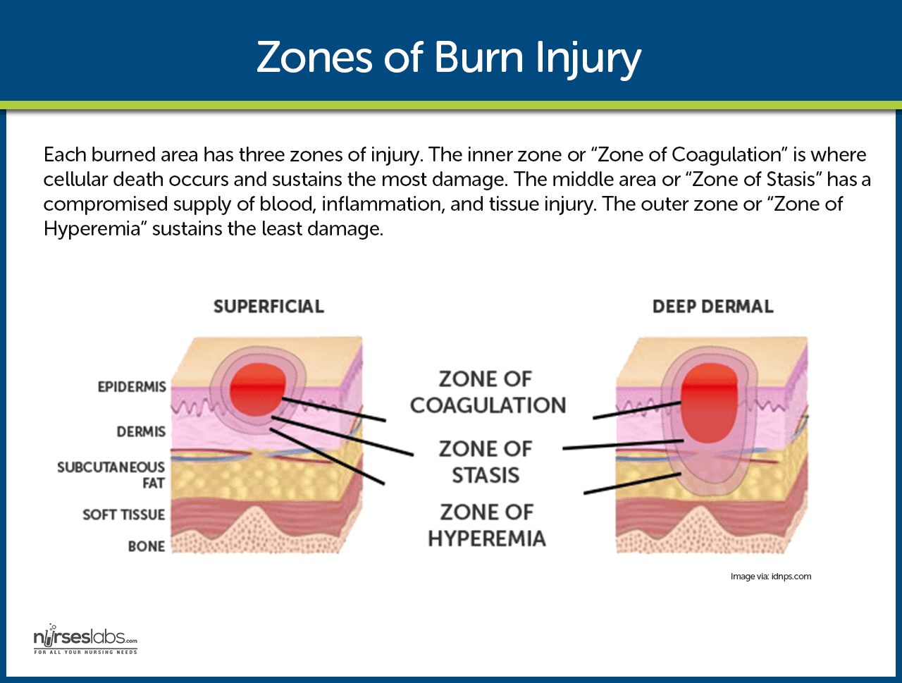 Zones of Burn Injury