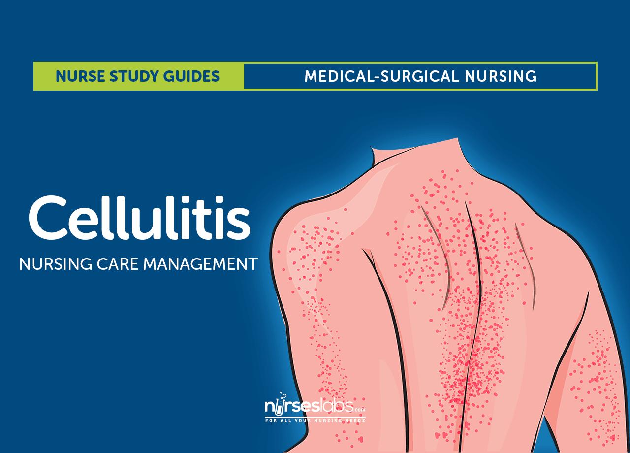 Cellulitis: Nursing Care and Management Study Guide