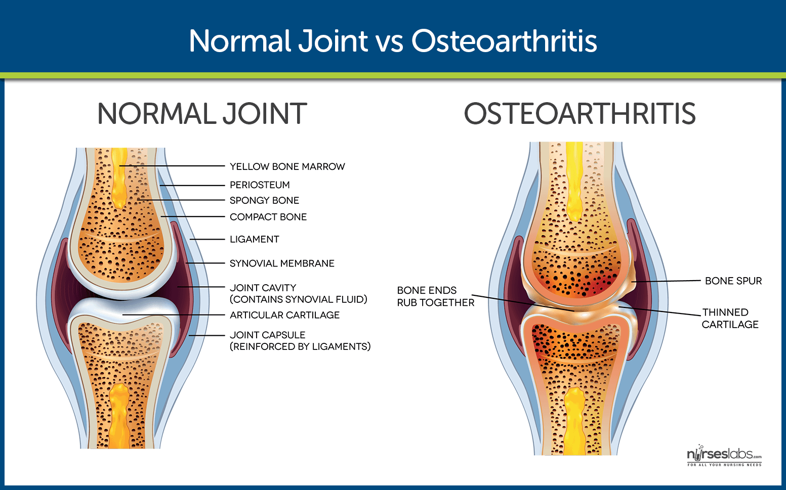 Normal Joint vs Osteoarthritic Joint