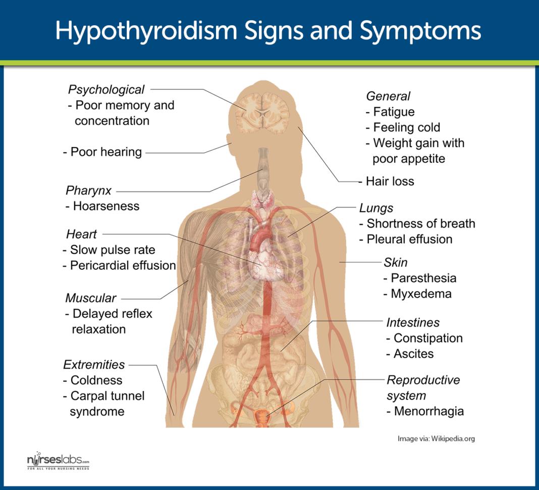 hypothyroidism essay