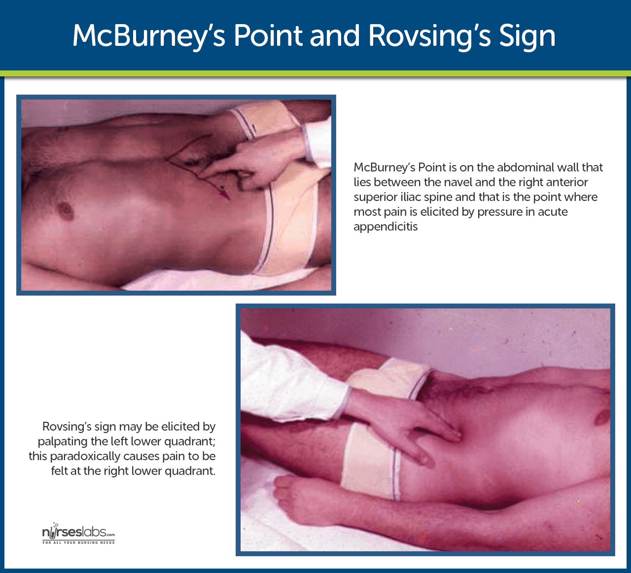 McBurney's Point and Rovsing's Sign
