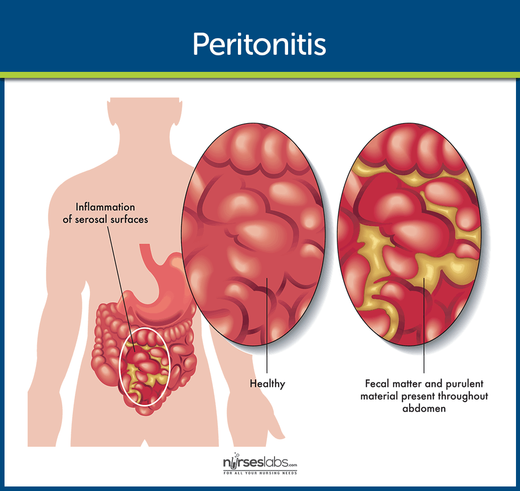 Peritonitis Pathophysiology