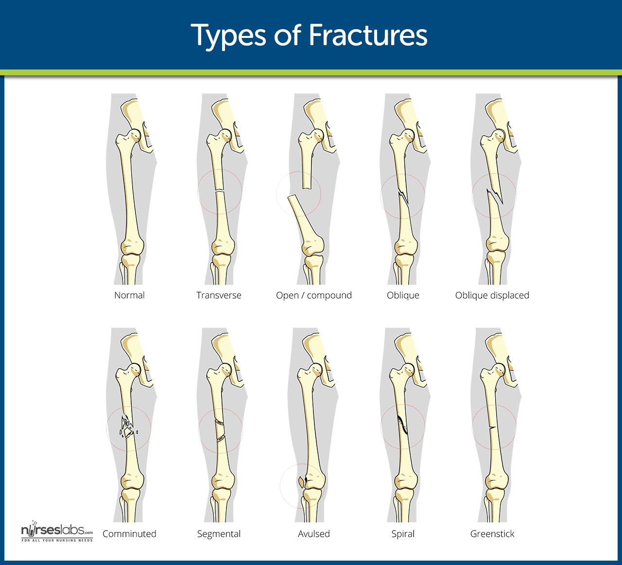 Fracture Nursing Care Management: Study Guide
