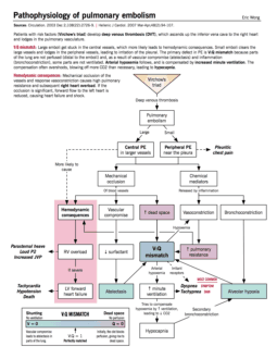 Pathophysiology of Pulmonary Embolism. Click the image to enlarge.