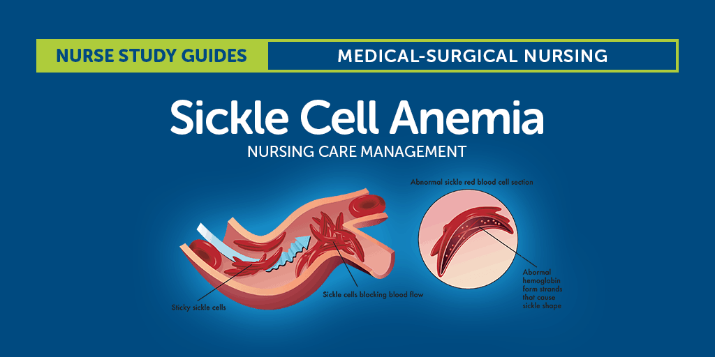 pediatric sickle cell anemia case study