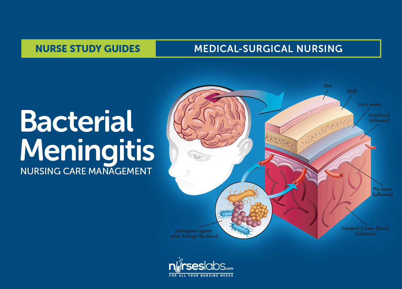 viral meningitis Do you suffer from herpes read more to learn about your increased risks of a viral meningitis infection.