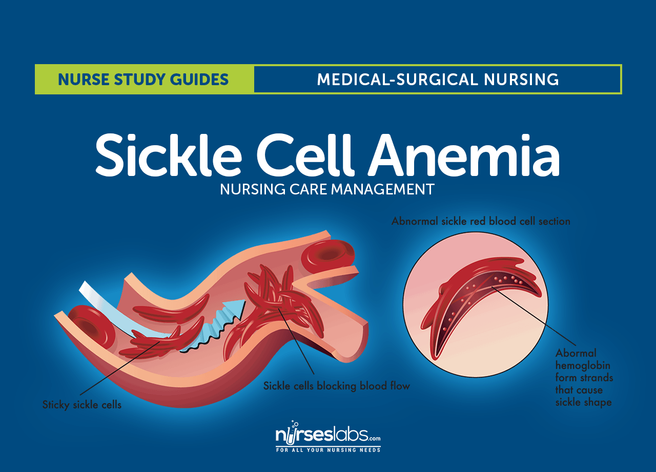 sickle cell anemia nursing care and management study guide