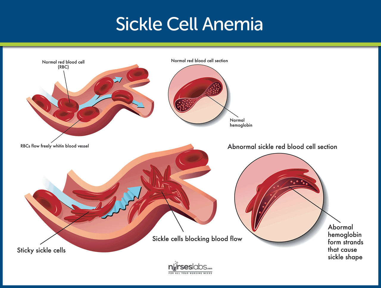 Data & Statistics on Sickle Cell Disease