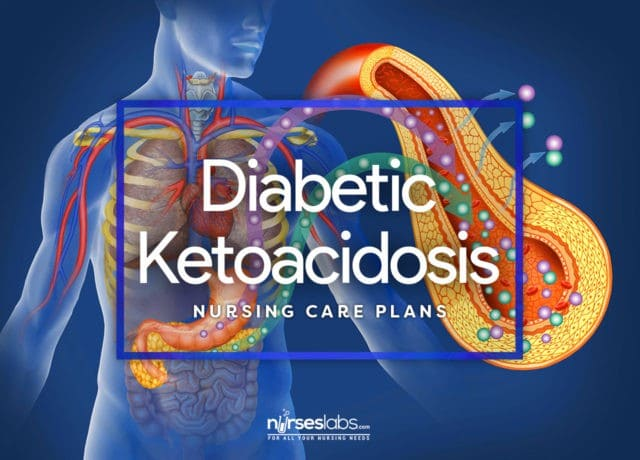 4 Diabetic Ketoacidosis and Hyperglycemic Hyperosmolar Nonketotic Syndrome Nursing Care Plans