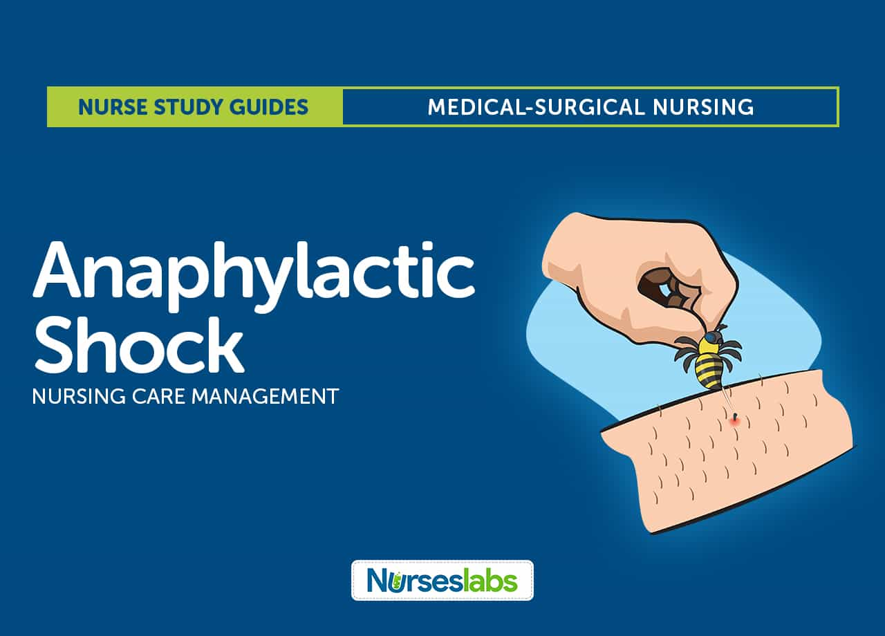 chapter 67 nursing management shock systemic Start studying lewis-chapter 67: nursing management shock, systemic inflammatory response syndrome, and multiple organ dysfunction syndrome learn vocabulary, terms, and more with flashcards, games, and other study tools.