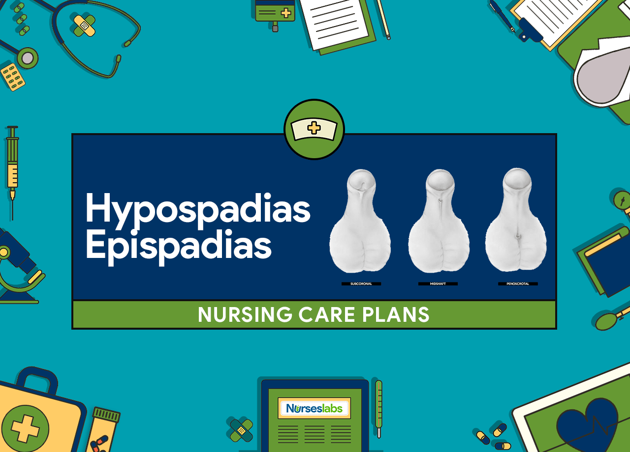4 Hypospadias_Epispadias Nursing Care Plans