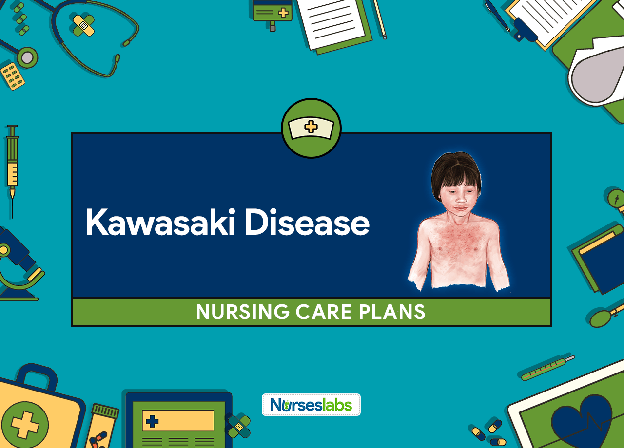 6 Kawasaki Disease Nursing Care Plans