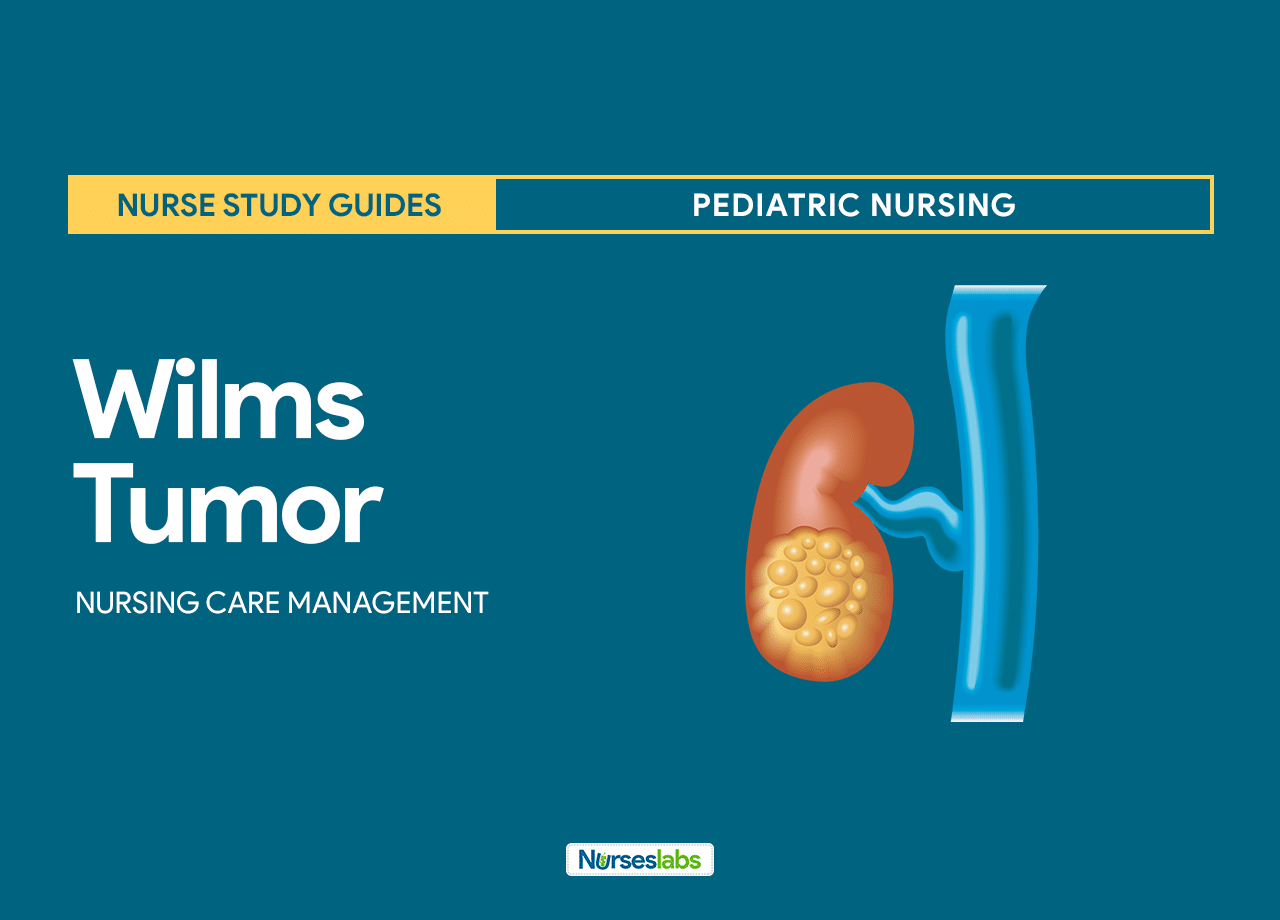Wilms Tumor (Nephroblastoma) Nursing Care Management