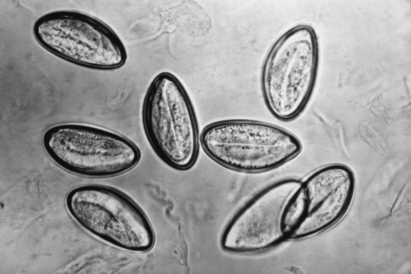This photomicrograph depicts the eggs of the human parasite Enterobius vermicularis via cellulose tape under significant magnification.