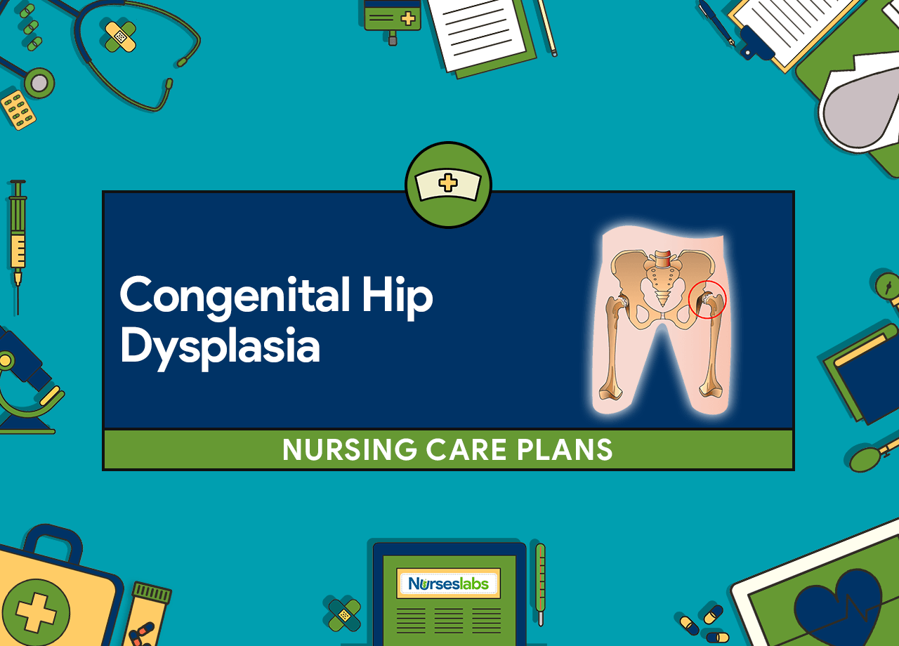 Congenital Hip Dysplasia Nursing Care Plans