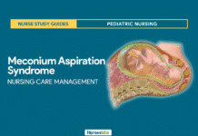 Meconium Aspiration Syndrome Nursing Care Management