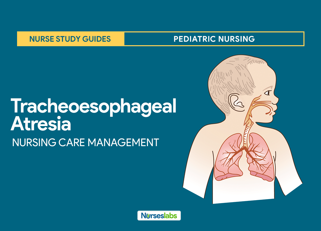 Tracheoesophageal Atresia Nursing Care Management
