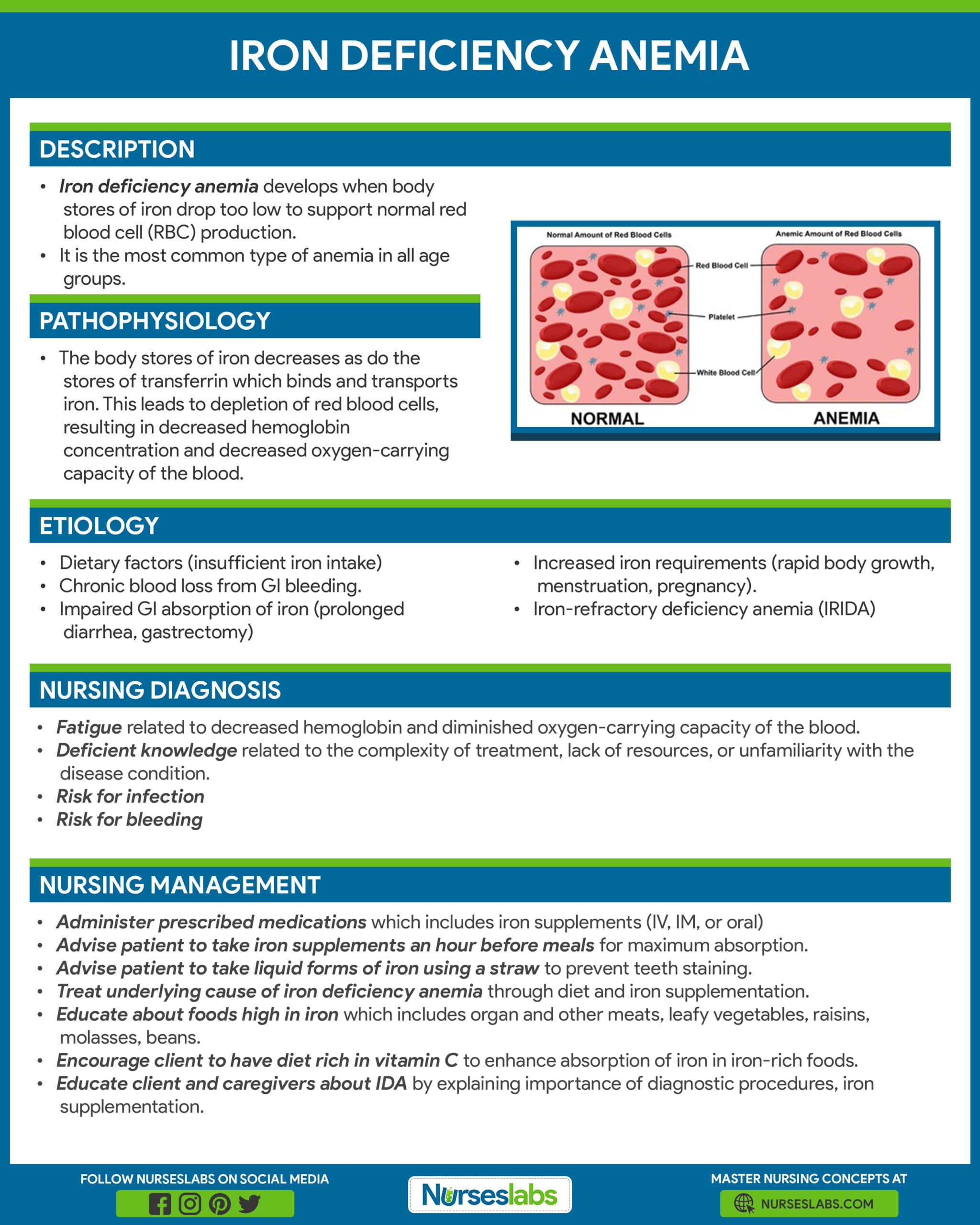 Iron Deficiency Anemia Nursing Care Management and Study Guide Infographic and Poster