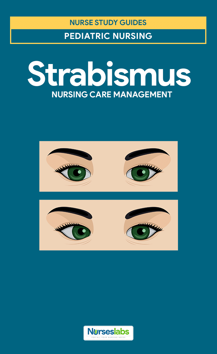 Strabismus Nursing Care Planning and Management