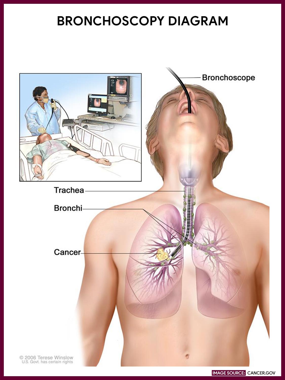 Diagram of a bronchoscopy. Image via: Cancer.gov