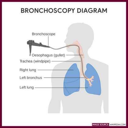 Diagram of a bronchoscopy. Image via: Wikipedia