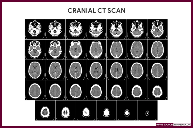 CRANIAL CT WITH IV CONTRAST MEDIUM