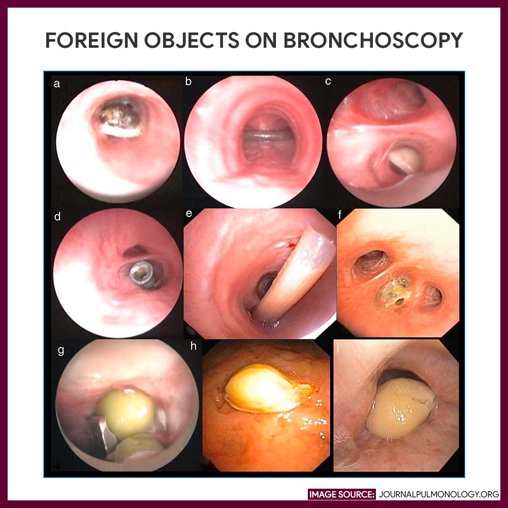 Foreign Objects Found via Bronchoscopy