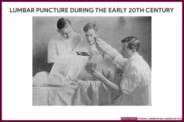 LUMBAR PUNCTURE DURING THE EARLY 20TH CENTURY