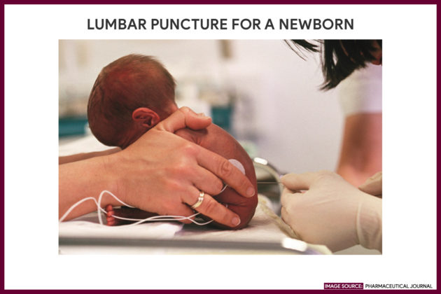 LUMBAR PUNCTURE FOR A NEWBORN