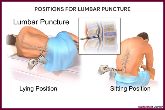 POSITIONS FOR LUMBAR PUNCTURE