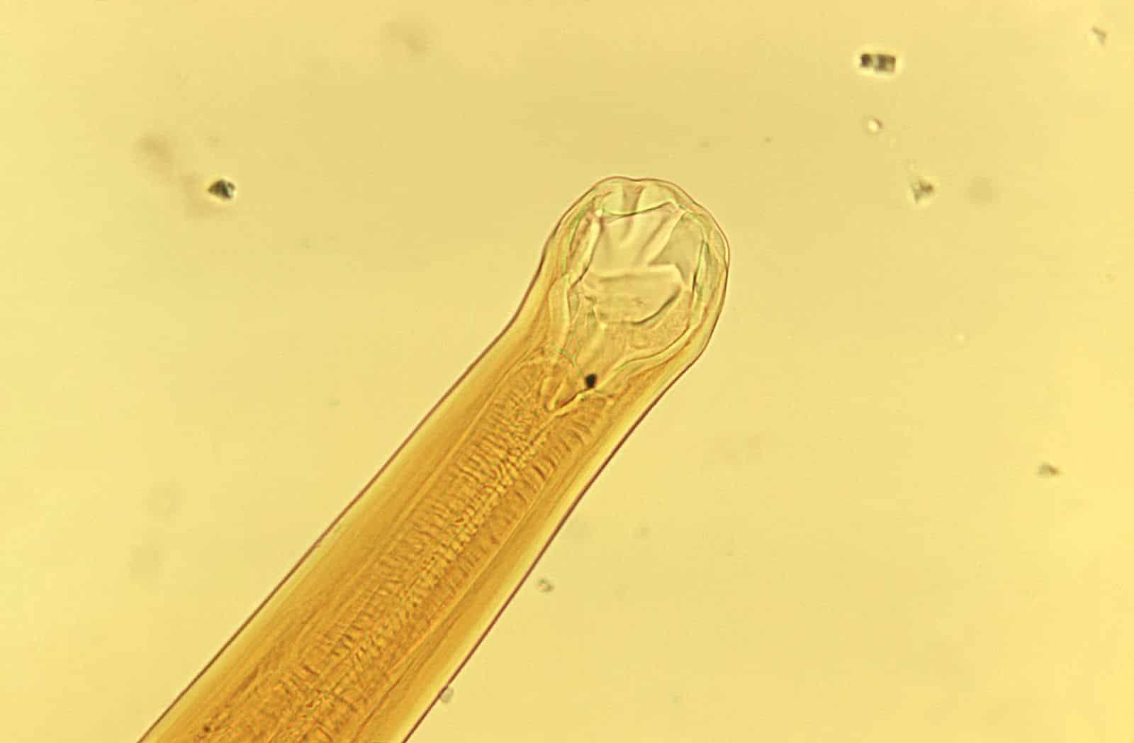 Hookworms Nursing Care Planning and Management - Nurseslabs