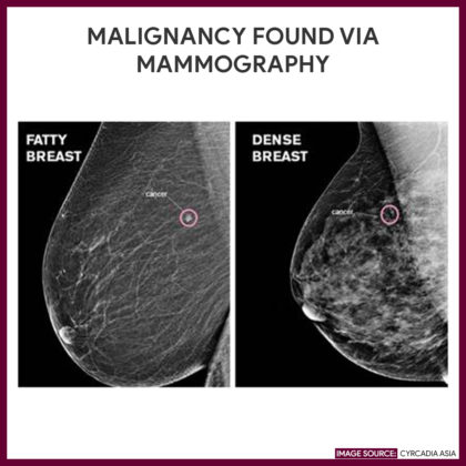 Fatty breast (right): small cancer can be easily seen; While Dense breast (left): even hard cancer is difficult to spot (dense tissue and cancer both appear as white) | Cyrcadia Asia