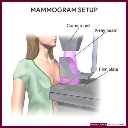 Setup during mammogram | MedicalXpress