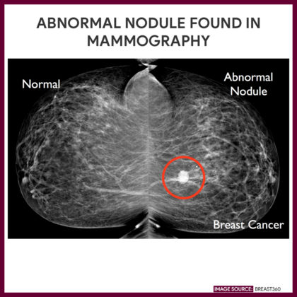 A mammogram showing a normal result vs an abnormal nodule found | Breast360