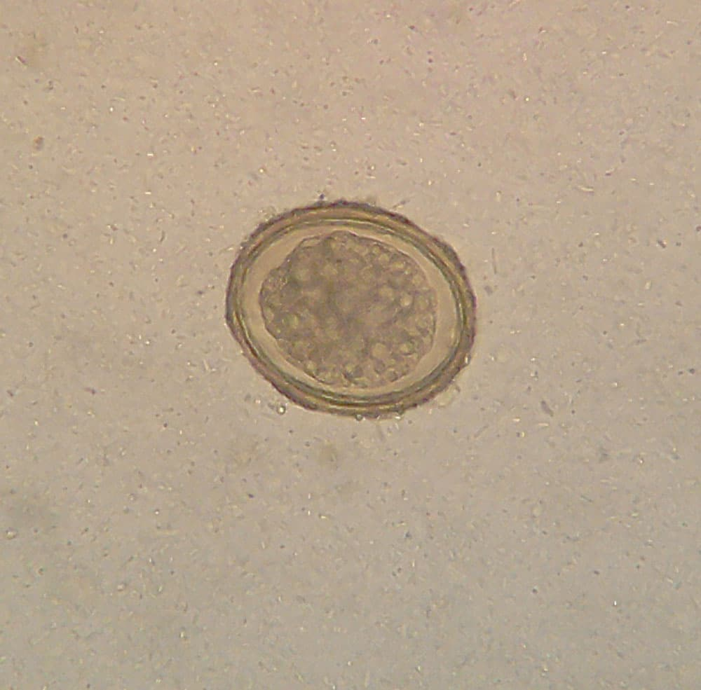 Roundworms (Ascariasis)