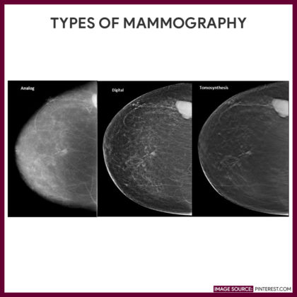 Difference of Analog, Digital & Tomosynthesis 3D Mammography | Dense breast-info
