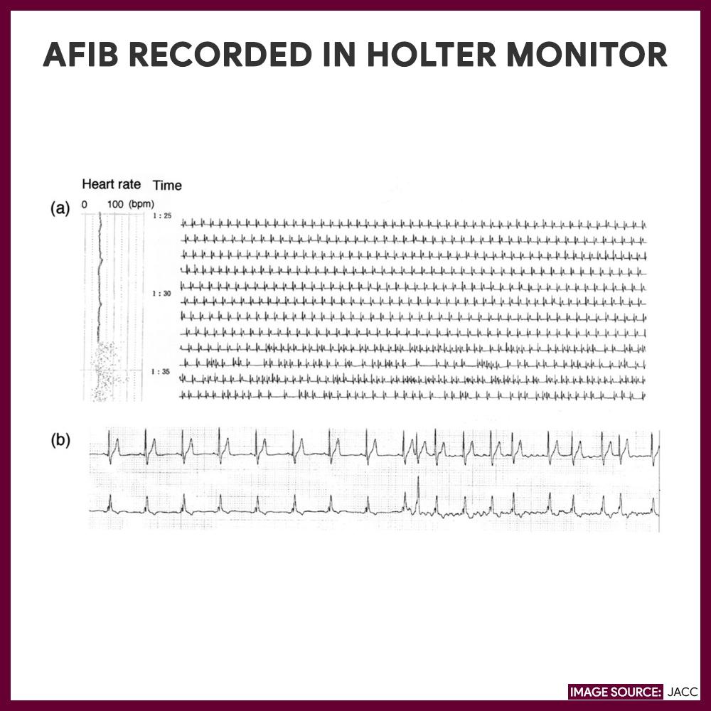 Atrial fibrillation recorded via holter.